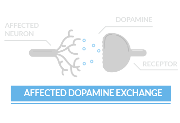 affected dopamine exchange