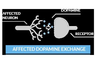 affected dopamine exchange